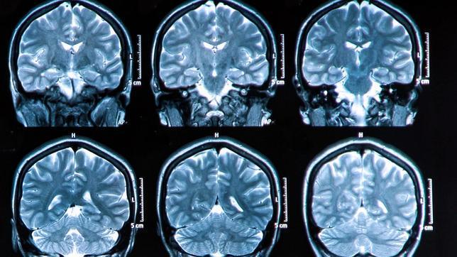 """""""Los recursos que se han dedicado al alzhéimer no tienen comparación con los que se han utilizado en otras enfermedades como el cáncer"""","""